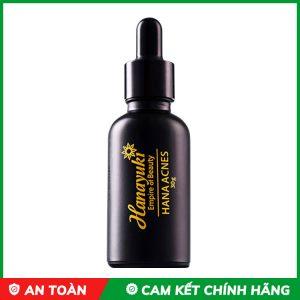 serum trị mụn hanayuki acnes